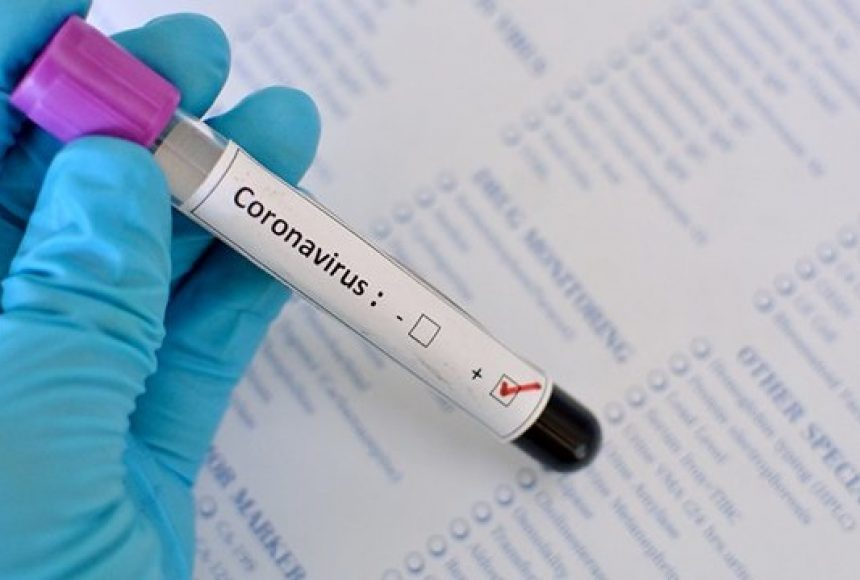 """Молодий хмільничанин одужав від коронавірусу. А у інфекційному відділенні нашої """"районки"""" лікують пацієнта з Літинського району"""